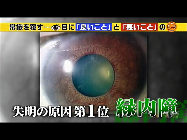 視神経に障害が起こり、視野が狭くなる病気「緑内障」