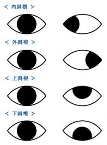 プリズムメガネや斜位について